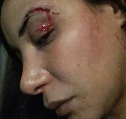 Maroc Loubna Abidar agressée